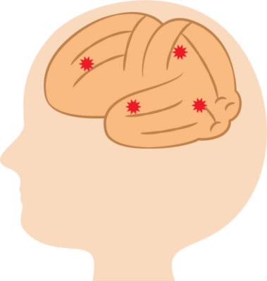 脳閉塞のイメージ